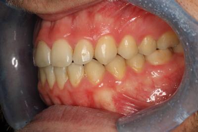 zęby po leczeniu 13