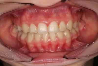 zęby po leczeniu 14
