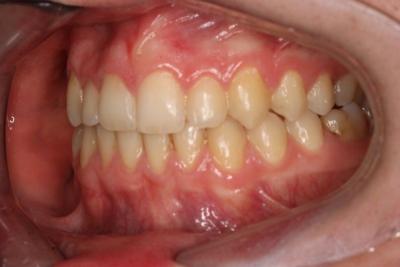 zęby po leczeniu 15