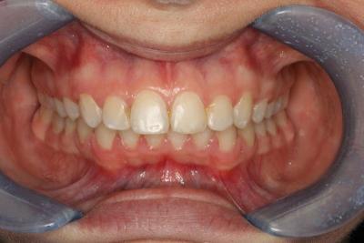 zęby po leczeniu 16