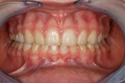 zęby po leczeniu 17