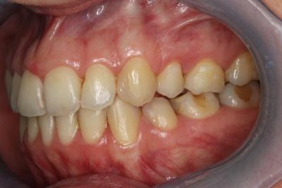zęby po leczeniu 19