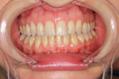 zęby po leczeniu 2