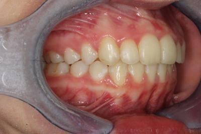 zęby po leczeniu 6