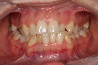 zęby przed leczeniem 10