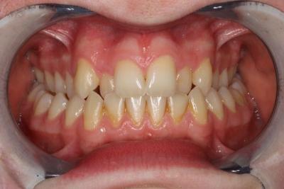 zęby przed leczeniem 12