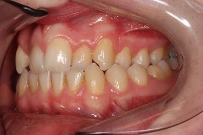 zęby przed leczeniem 13