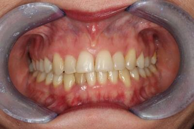 zęby przed leczeniem 14