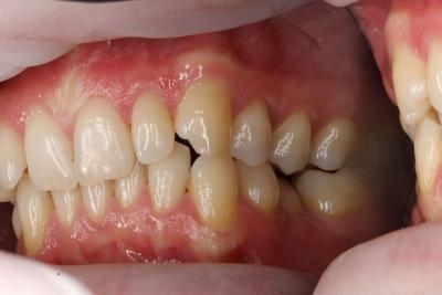 zęby przed leczeniem 16