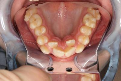 zęby przed leczeniem 18