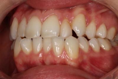 zęby przed leczeniem 21