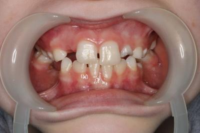 zęby po leczeniu 3