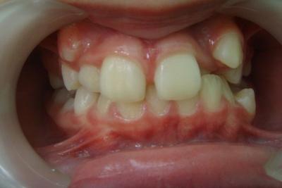 zęby przed leczeniem 5