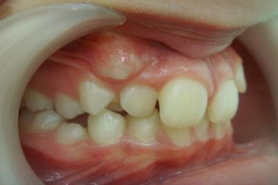 zęby przed leczeniem 6