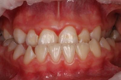 zęby przed leczeniem 7