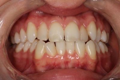 zęby przed leczeniem 8