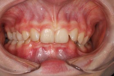 zęby przed leczeniem 9